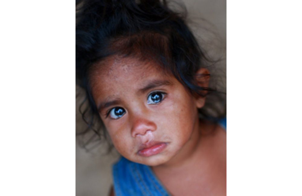 According to UNICEF, the infant and under-five mortality rates in Timor-Leste are relatively high, w